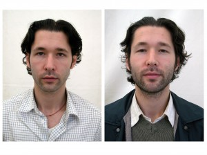 """""""Before and After"""" by Peter Seidler"""