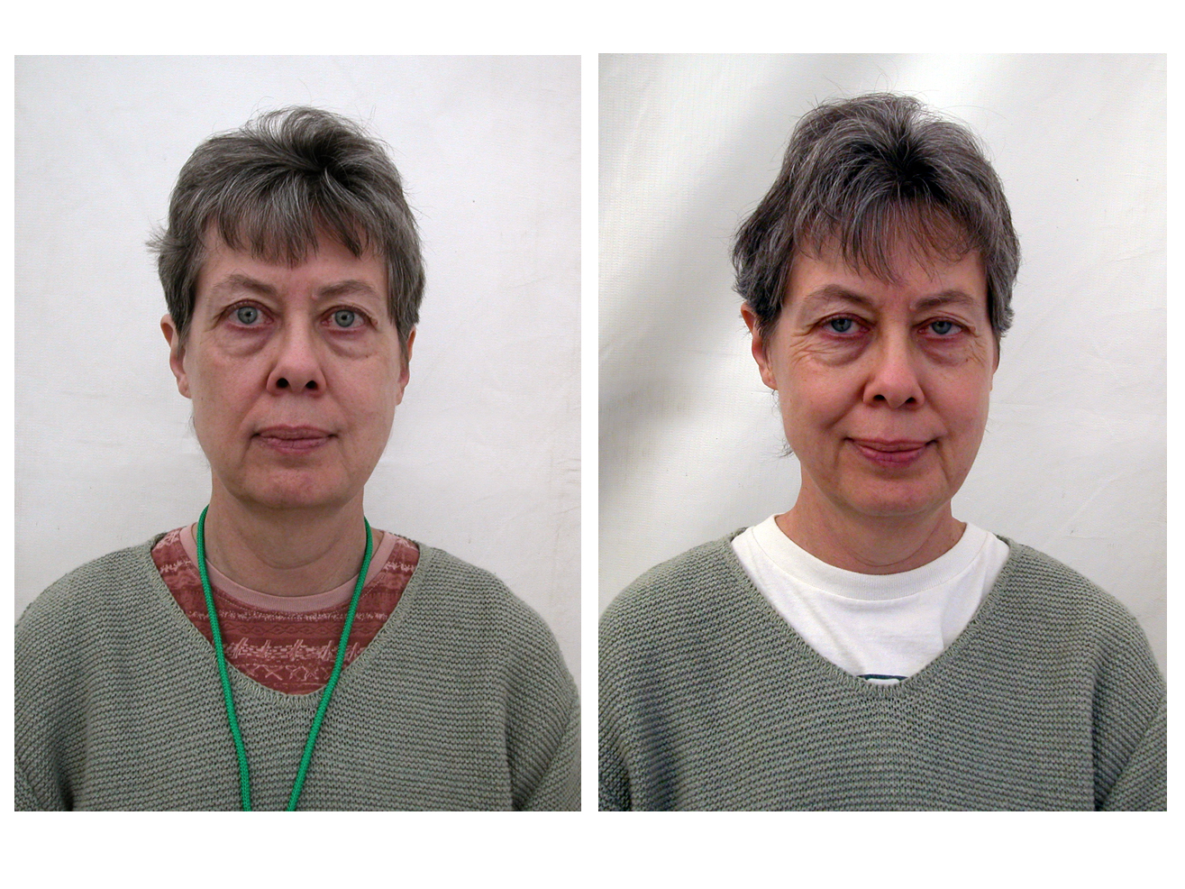 Before And After Portraits From Dathun